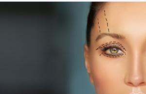 Eyelid Surgery Adelaide